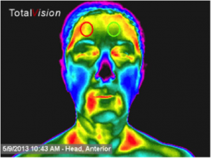 thermal-face