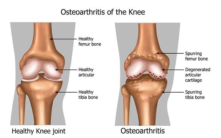 Osteoarthritis Pain Relief In Jacksonville , FL - Jacksonville Acupuncture Clinic