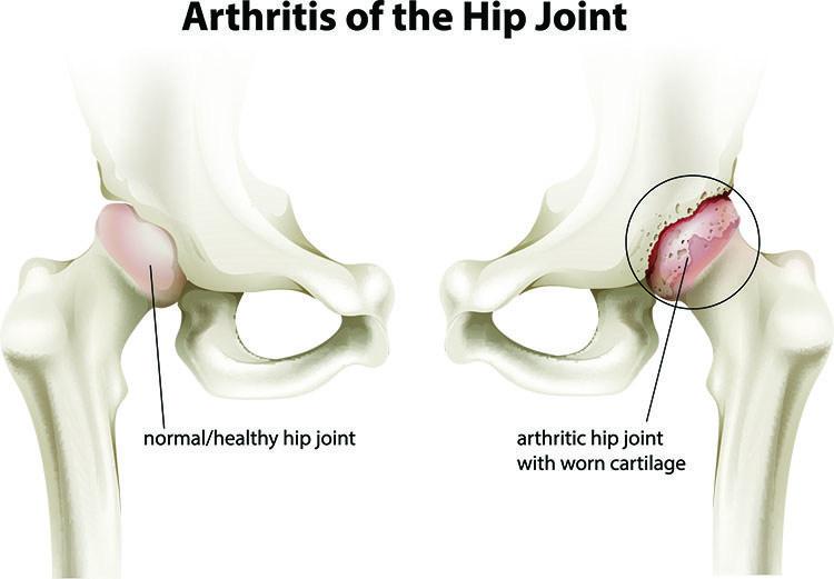 Arthritis Pain Relief In Jacksonville , FL - Jacksonville Acupuncture Clinic