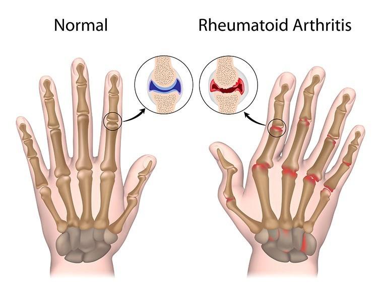 Rheumatoid Arthritis Pain Relief In Jacksonville , FL - Jacksonville Acupuncture Clinic